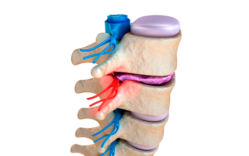 Biomaterial scaffold implanted after spinal cord injury promotes nerve regeneration