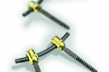 icotec VADER® Pedicle System made from Carbon/PEEK