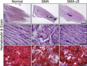 From left to right: Microscopic images comparing the hind leg muscles of normal mice, mice with spinal muscular atrophy, and mice with spinal muscular atrophy that have had the enzyme JNK3 inhibited. JNK3 deficiency appears to reduce muscle degeneration (muscle-wasting) and increase muscle growth in mice with the disease.  Credit: Image courtesy of the journal Human Molecular Genetics.