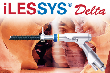 iLESSYS® Delta – New system for treatment of central spinal stenosis