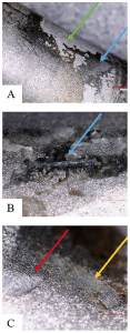 Figure 2: highly corroded junctions on spine retrievals, with signs of: (A) corrosive debris (blue arrow) compared with unworn areas (green arrow); (B) corrosive deposits (blue arrow) in higher magnification; and (C) fretting (yellow arrow) and pitting (red arrow).