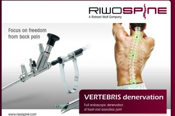 VERTEBRIS – full-endoscopic denervation of facet and sacroiliac joint