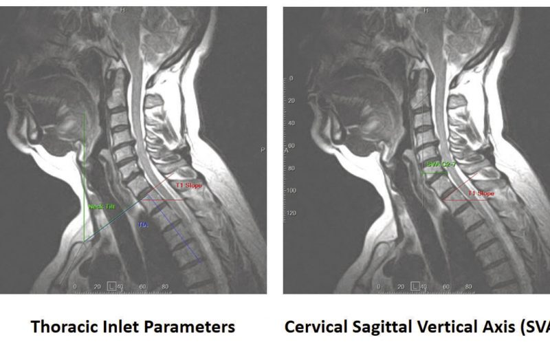 Evaluation of cervical degenerative spondylolisthesis using Kinematic MRI