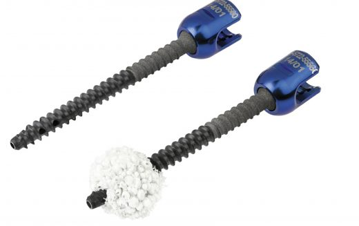icotec VADER® Pedicle System made of BlackArmor®