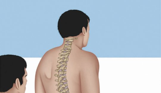 BOOK REVIEW: Physical Examination of the Spine