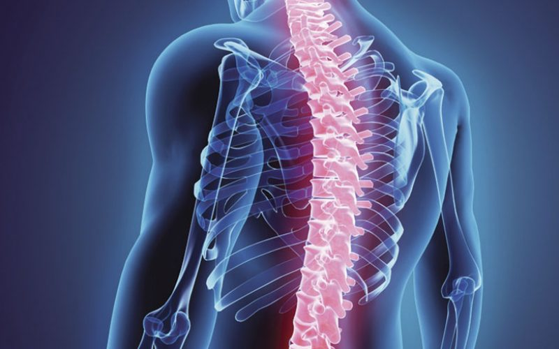 Application of enhanced recovery after surgery to spinal surgery