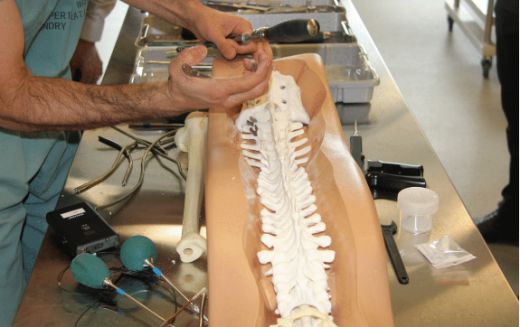 Utilisation of radiostereometric analysis (RSA) to assess quality of spinal fusion