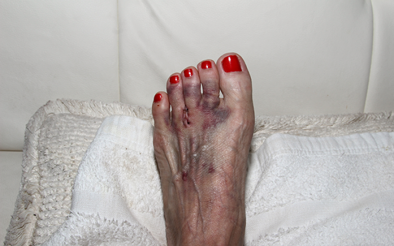 Morton's neuroma: Healing the effects of high heels