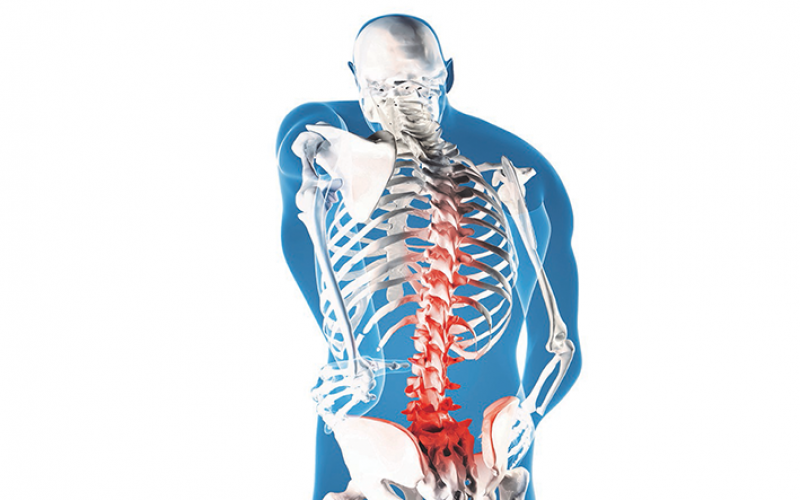 Acting on impulse – spinal cord stimulation