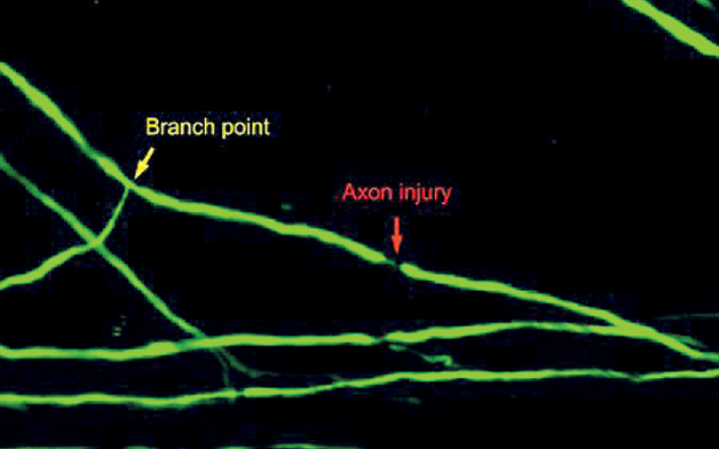 Spinal cord axon injury location determines regenerative fate of neuron