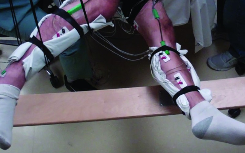 Paralysed men move legs with new non-invasive spinal cord stimulation