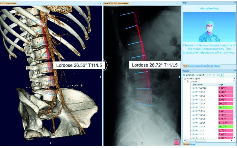 mediCAD Spine® 3D – Your powerful tool for spine surgery of tomorrow!