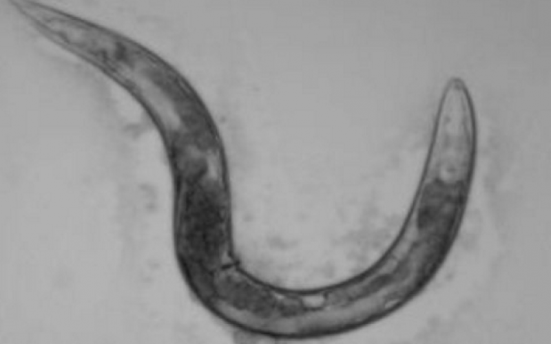 Study explains how a protein deficiency causes spinal muscular atrophy