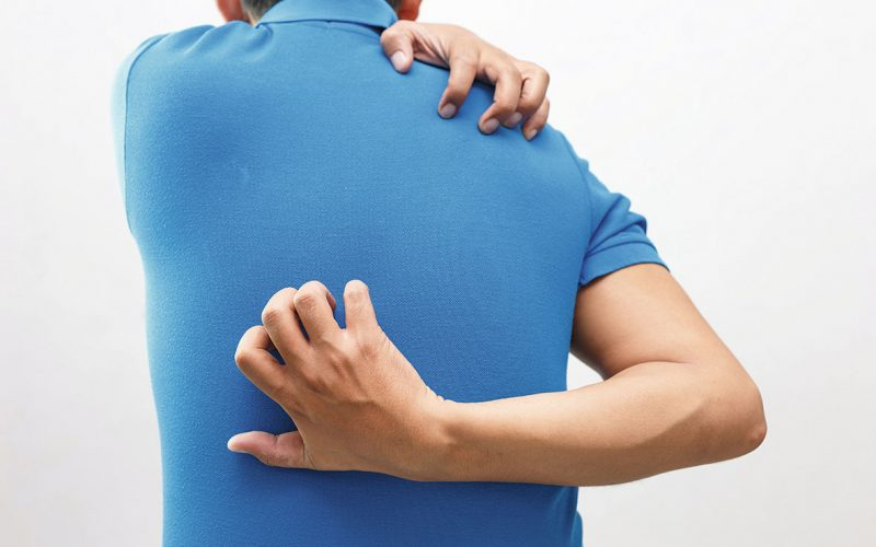 Why pain often accompanies intense chemical-induced itch