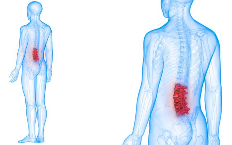 Risk of PJK following lumbar spinal fusion depends on level of spine fused
