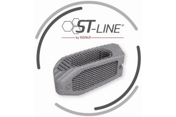 WOMBAT® ST by SIGNUS – Transforaminal lumbar interbody fusion