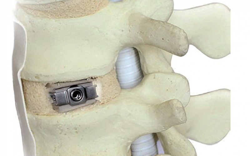 Innovative hybrid PEEK-titanium expandable cage for DLIF and OLIF procedures