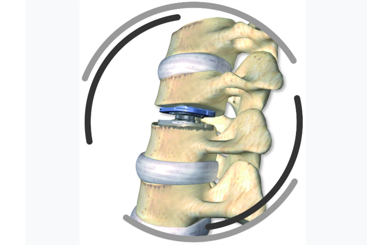 Cervical disc arthroplasty