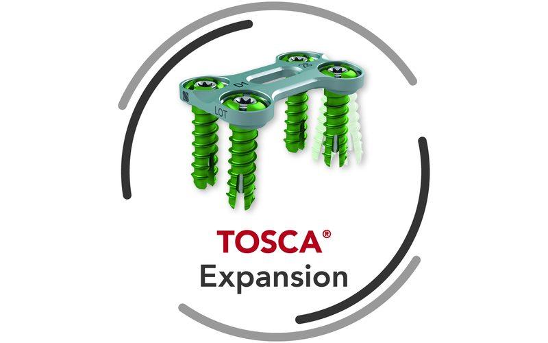 TOSCA®  Standard and Expansion – Anterior Cervical Stabilization