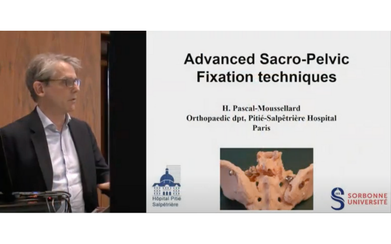 NSpine: Advanced sacropelvic fixation techniques