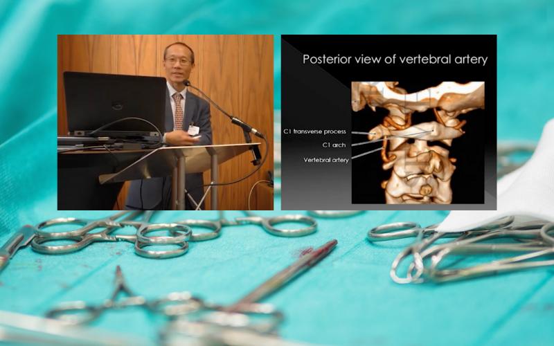 NSpine: Craniocervical Junction Chordomas