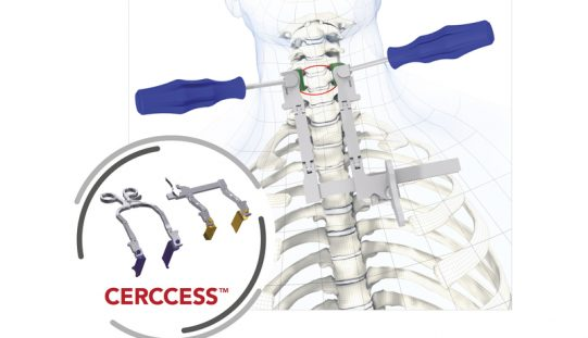 CERCCESS – Cervical retractor system