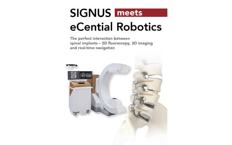 SIGNUS and eCential Robotics annonce long-term partnership offering an optimised solution combining navigation, robotics and implant systems for spine surgeries